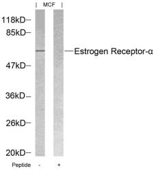Anti-Estrogen Receptor alpha antibody used in Western Blot (WB). GTX50420