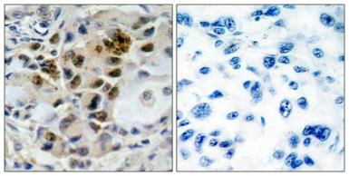 Anti-FOXO4 antibody used in IHC (Paraffin sections) (IHC-P). GTX50500