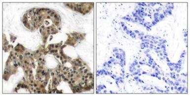 Anti-4E-BP1 antibody used in IHC (Paraffin sections) (IHC-P). GTX50543
