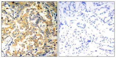 Anti-NFkB p100 antibody used in IHC (Paraffin sections) (IHC-P). GTX50610