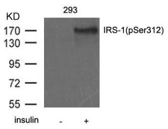 Anti-IRS1 (phospho Ser312) antibody used in Western Blot (WB). GTX50680