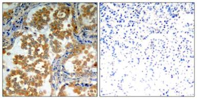 Anti-PKC zeta antibody used in IHC (Paraffin sections) (IHC-P). GTX50684