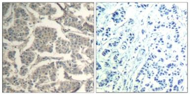 Anti-Cofilin1/Cofilin2 antibody used in IHC (Paraffin sections) (IHC-P). GTX50872