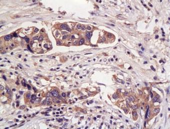 Anti-Haptoglobin antibody used in IHC (Paraffin sections) (IHC-P). GTX51524