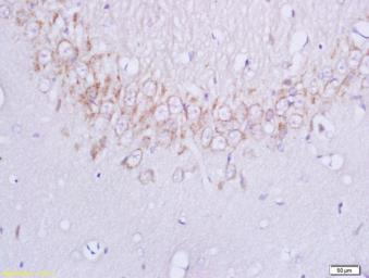 Anti-Plexin B1 antibody used in IHC (Paraffin sections) (IHC-P). GTX51549