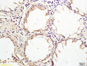 Anti-HHLA2 antibody used in IHC (Paraffin sections) (IHC-P). GTX51981