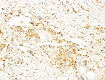 Anti-AMPK alpha (phospho Thr172) antibody used in IHC (Paraffin sections) (IHC-P). GTX52341