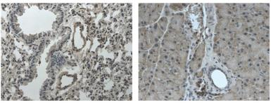 Anti-TrkC antibody [6G17] used in IHC (Paraffin sections) (IHC-P). GTX53108