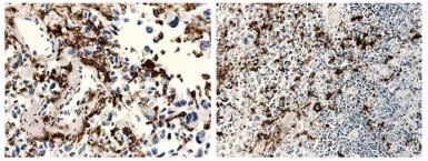 Anti-Macrophage antibody [11H3] used in IHC (Paraffin sections) (IHC-P). GTX53120