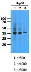 Anti-AKR1C1 antibody [AT6D10] used in Western Blot (WB). GTX53684