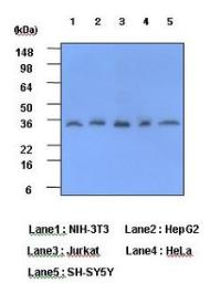 Anti-C Reactive Protein antibody [5A9] used in Western Blot (WB). GTX53706