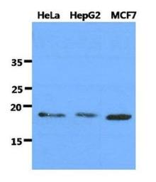 Anti-DNAL1 antibody [AT29E4] used in Western Blot (WB). GTX53709