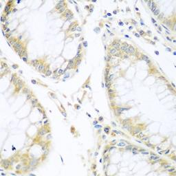 Anti-Cullin 3 antibody used in IHC (Paraffin sections) (IHC-P). GTX53933