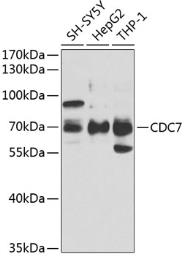 Anti-CDC7 antibody used in Western Blot (WB). GTX53964