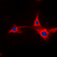 Anti-PFKFB2 antibody used in Immunocytochemistry/ Immunofluorescence (ICC/IF). GTX55273