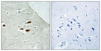 Anti-PER2 (phospho Ser662) antibody used in IHC (Paraffin sections) (IHC-P). GTX55438