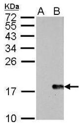 Anti-Histone H2A.XS139ph (phospho Ser139) antibody [GT2311] used in Western Blot (WB). GTX628789