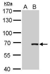Anti-Cre recombinase antibody [GT10212] used in Western Blot (WB). GTX629479