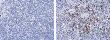 Anti-Porcine circovirus type 2 / PCV2 Capsid antibody [GT863] used in IHC (Paraffin sections) (IHC-P). GTX634210