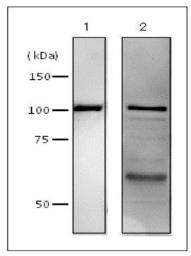 Anti-DNA Polymerase I (E coli) antibody used in Western Blot (WB). GTX64108
