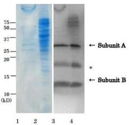 Anti-E. coli LT toxin antibody used in Western Blot (WB). GTX64109