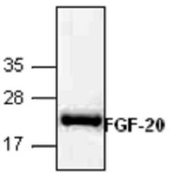 FGF-20-recombinant-protein-GTX65416-WB-1_18121410_376.jpg