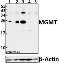 Anti-MGMT antibody used in Western Blot (WB). GTX66683