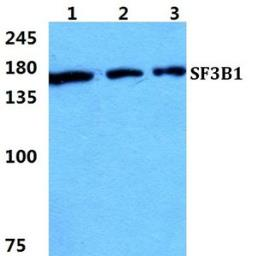 Anti-SF3B1 antibody used in Western Blot (WB). GTX66743
