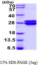 Mouse Glyoxalase I  protein, His tag (active). GTX67015-pro