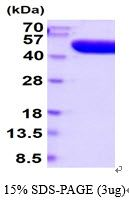 Human Prostatic Acid Phosphatase protein, His tag (active). GTX67141-pro