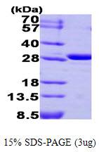 Human Carbonic Anhydrase III protein. GTX67258-pro
