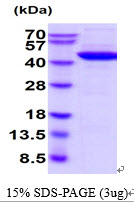 Human Creatine kinase (brain) protein. GTX67298-pro