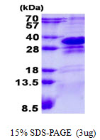 Human CHMP1A protein, His tag. GTX67619-pro