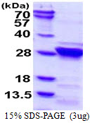Human RGS4 protein, His tag. GTX67748-pro