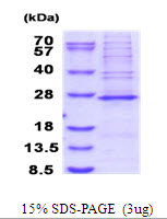 Human MRPS23 protein, His tag. GTX68527-pro