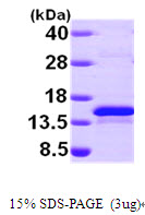 Human Selenoprotein R protein, His tag. GTX68537-pro