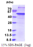 Human THAP11 protein, His tag. GTX68653-pro