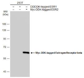 Anti-Estrogen Receptor beta antibody [14C8] used in Western Blot (WB). GTX70174