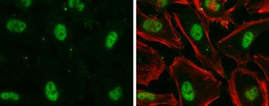 Anti-Nuclear Matrix Protein p84 antibody [5E10] used in Immunocytochemistry/ Immunofluorescence (ICC/IF). GTX70220