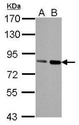 Anti-Nuclear Matrix Protein p84 antibody [5E10] used in Western Blot (WB). GTX70220