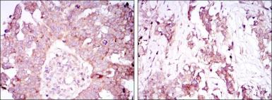 Anti-Ataxin 1 antibody [2F5] used in IHC (Paraffin sections) (IHC-P). GTX80399