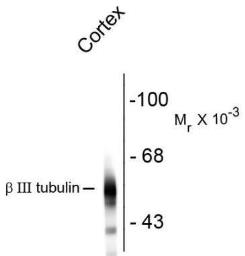 Anti-beta Tubulin 3/ Tuj1 antibody [AA10] used in Western Blot (WB). GTX82572