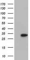 Anti-SULT2A1 antibody [4D7] used in Western Blot (WB). GTX83539