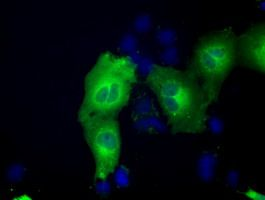 Anti-ACAT2 antibody [1B7] used in Immunocytochemistry/ Immunofluorescence (ICC/IF). GTX84968