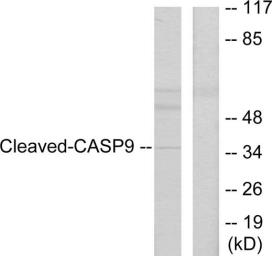 Anti-Caspase 9 (cleaved Asp330) antibody used in Western Blot (WB). GTX86928