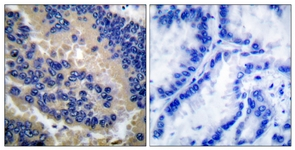 Anti-Caspase 3 (cleaved Asp175) antibody used in IHC (Paraffin sections) (IHC-P). GTX86952