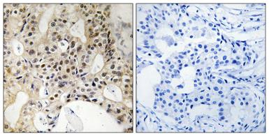 Anti-LATS1 + LATS2 antibody used in IHC (Paraffin sections) (IHC-P). GTX87014