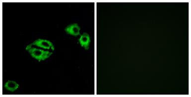 Anti-NPY5R antibody used in Immunocytochemistry/ Immunofluorescence (ICC/IF). GTX87079