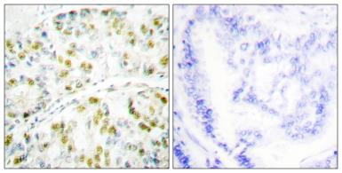 Anti-Ataxin 1 antibody used in IHC (Paraffin sections) (IHC-P). GTX87190