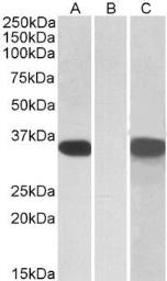 Anti-CRISP2 antibody, Internal used in Western Blot (WB). GTX88148